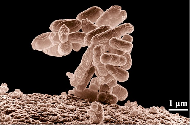 A cluster of Escherichia coli (E. coli) bacteria magnified 10,000 times that is generally found in the intestines.